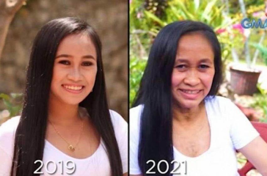 16-ամյա աղջիկը հազվադեպ հիվանդության պատճառով տարեց կնոջ տեսք է ստացել (Տեսանյութ)